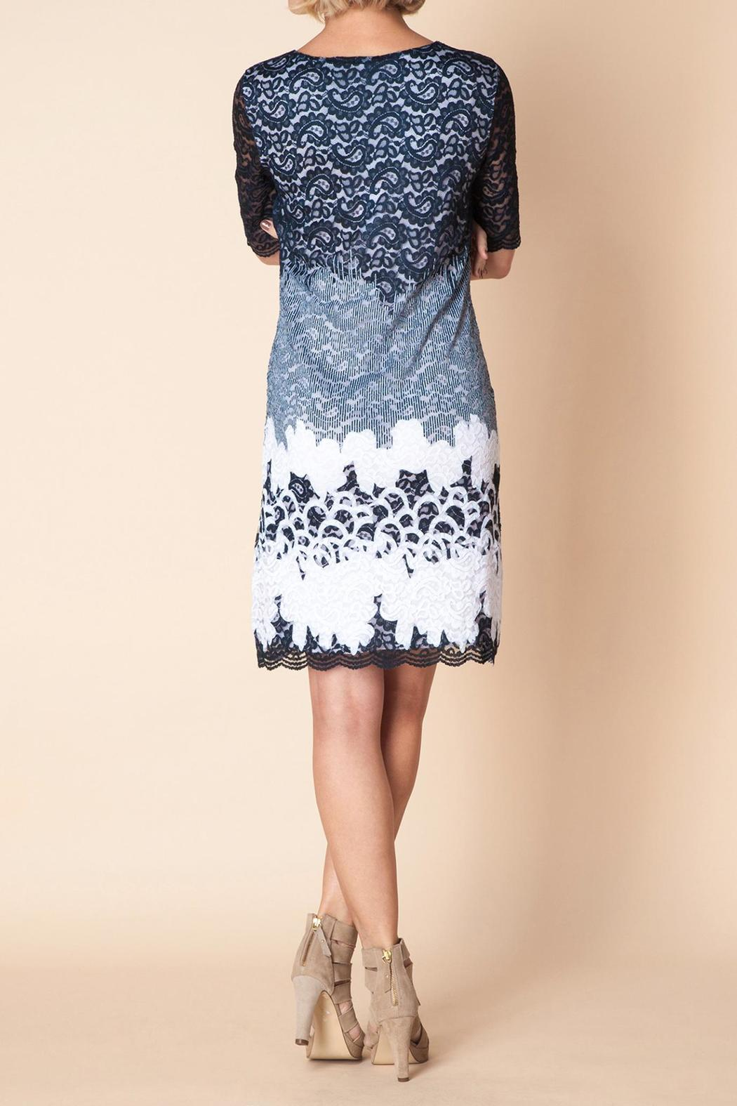 Yest Eclipse Lace Dress - Side Cropped Image